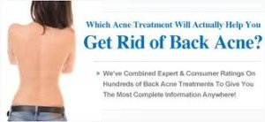 Acne Back Treatment, Know Better