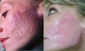 How to rid severe acne and scars at the same time?