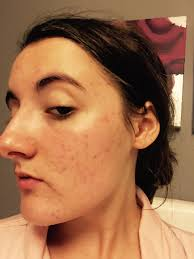 How bad is your acne when using accutane