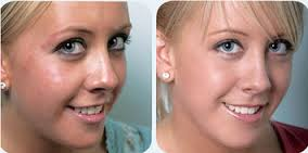 How long till acne free treatment shows results