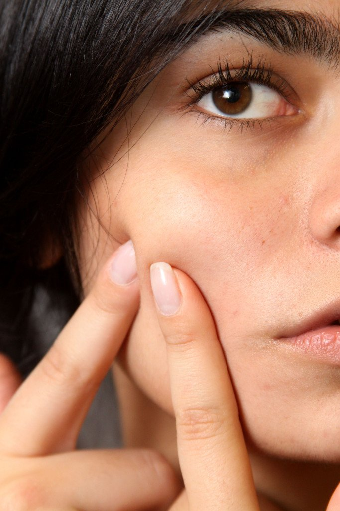 what causes acne problem