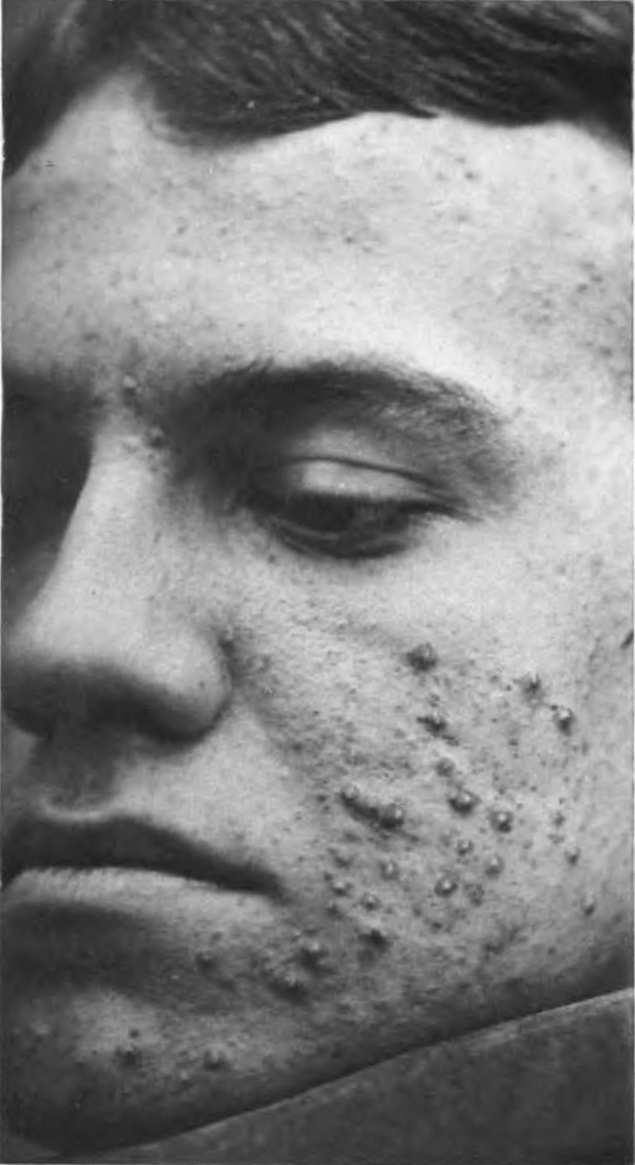 Read This if Pimples Has Got You Down