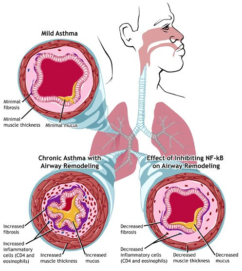 Learn More About Asthma by Reading This Advice