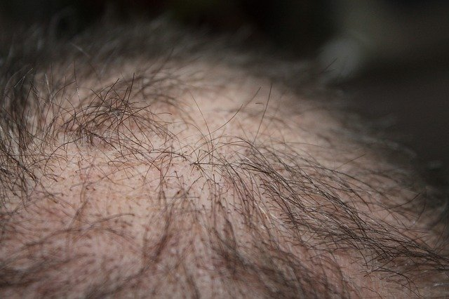Stop Thinning Hair With These Great Tips