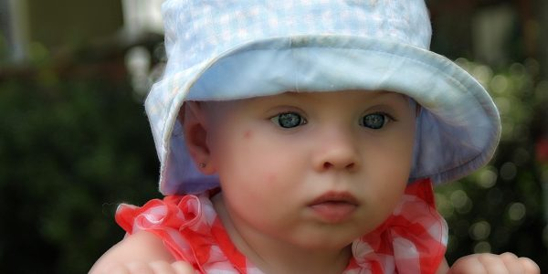 What is Baby Acne and Milia: Baby Skin Condition?