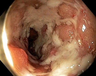 How Serious Is Ulcerative Colitis