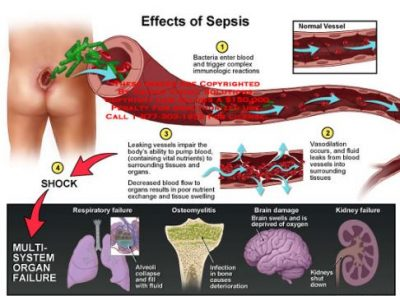 Effect Of Sepsis