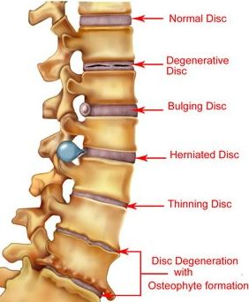 Example of Disc Problems