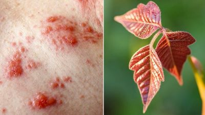 Poison Ivy Rash And Poison Ivy