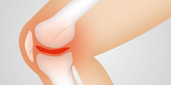 What is the best exercise for osteoarthritis?