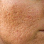 Acne Scars Information