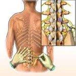 Arthritis Lower Spine, Understand Better
