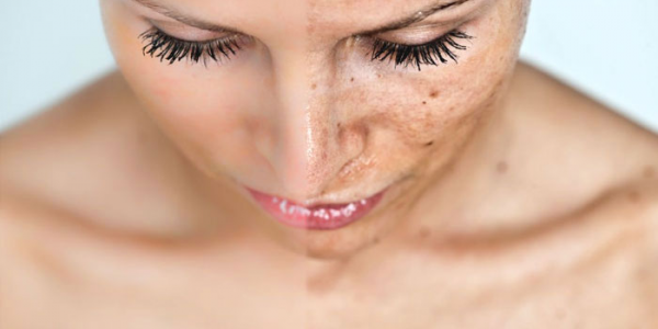 Over the Counter Acne Treatment: What are They Composed of?