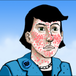 Is there a good way to prevent acne without medicine?
