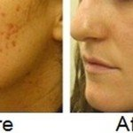What is a natural way to get rid of acne and acne scars?