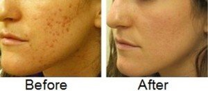 What is a natural way to get rid of acne and acne scars