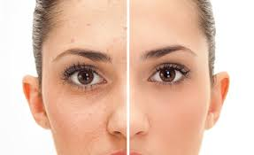 What is the easiest way to get rid of acne...