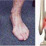Ankle Arthritis, Understand It Better