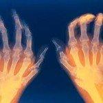 Rheumatoid Arthritis, Understand Better