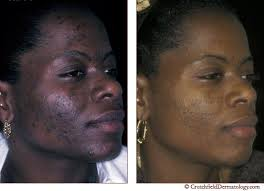 What are some inexpensive ways to rid acne for african americans