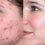 Severe Acne and Baby Acne: Essential Things You Need to Know
