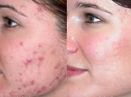 There's a lot that you can do overnight to help clear your acne and acne scars.