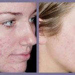 What is the best laser treatment for acne?