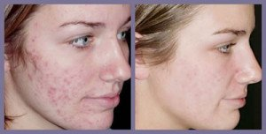 What is the best laser treatment for acne
