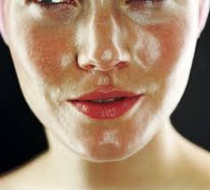 acne rosacea treatment face