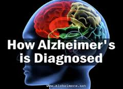Alzheimers Disease Diagnosed, Know Better