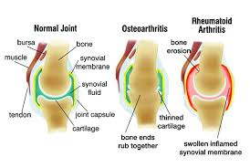 Arthritis Causes, Understand Better