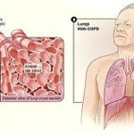 Natural Remedies for Emphysema