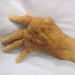 Solid Arthritis Information Is Here if You Need Some Help