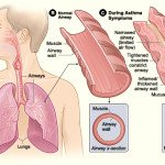 Breathe Easier With This Advice on Asthma