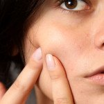 How to Treat Hormonal Acne – 5 Fast and Easy Ways
