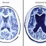 Alzheimers Disease Affects The Brain
