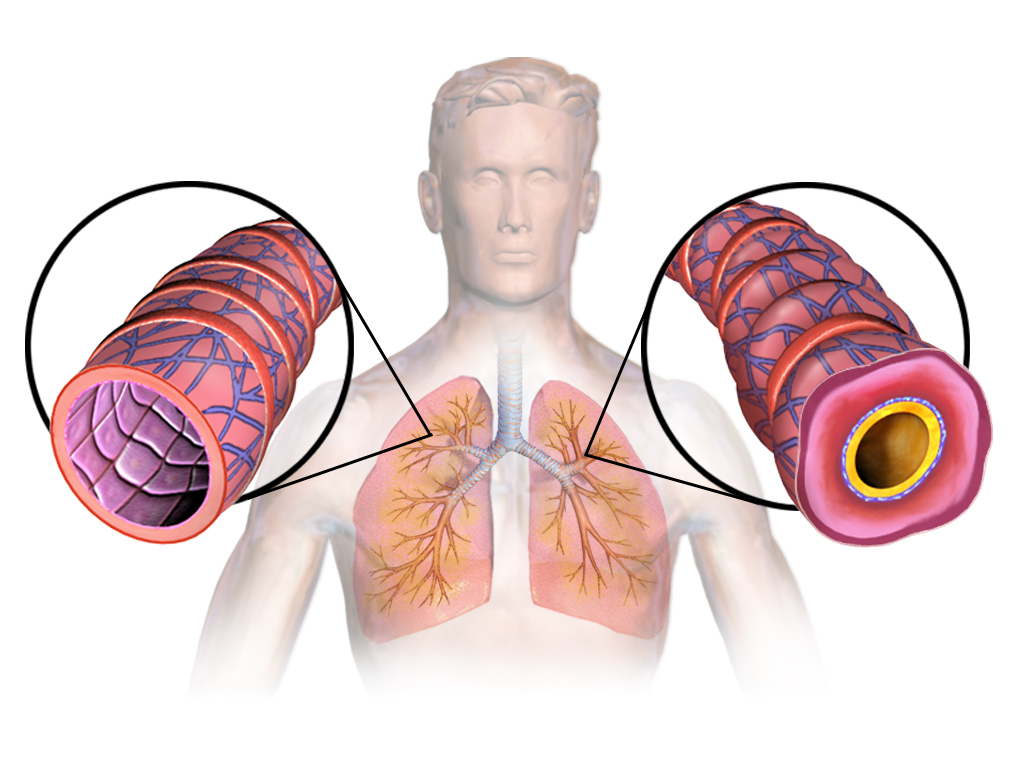 Great Tips if You're Suffering From Asthma