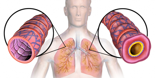 Solid Advice if You Are Living With Asthma