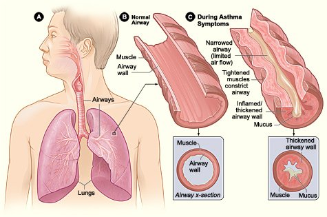 Is Your Asthma Leaving You Short of Breath? Help Is Here!