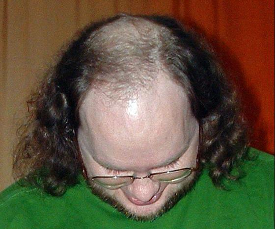 Hair Loss Tips You Can Try Out Today!