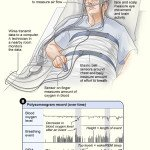 Tips to Handle Sleep Apnea Problems Easily