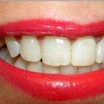 Get a Dazzling, White Smile With These Easy Tips