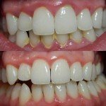 Excellent Tips for Successfully Whitening Your Teeth