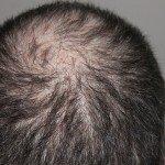 Hair Today, Gone Tomorrow: Thinning Hair Advice