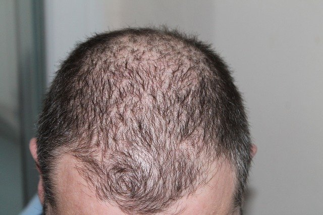 Stop Losing Sleep Over Hair Loss – Help Is Here!