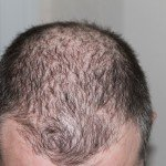 Learn How to Effectively Stop Thinning Hair