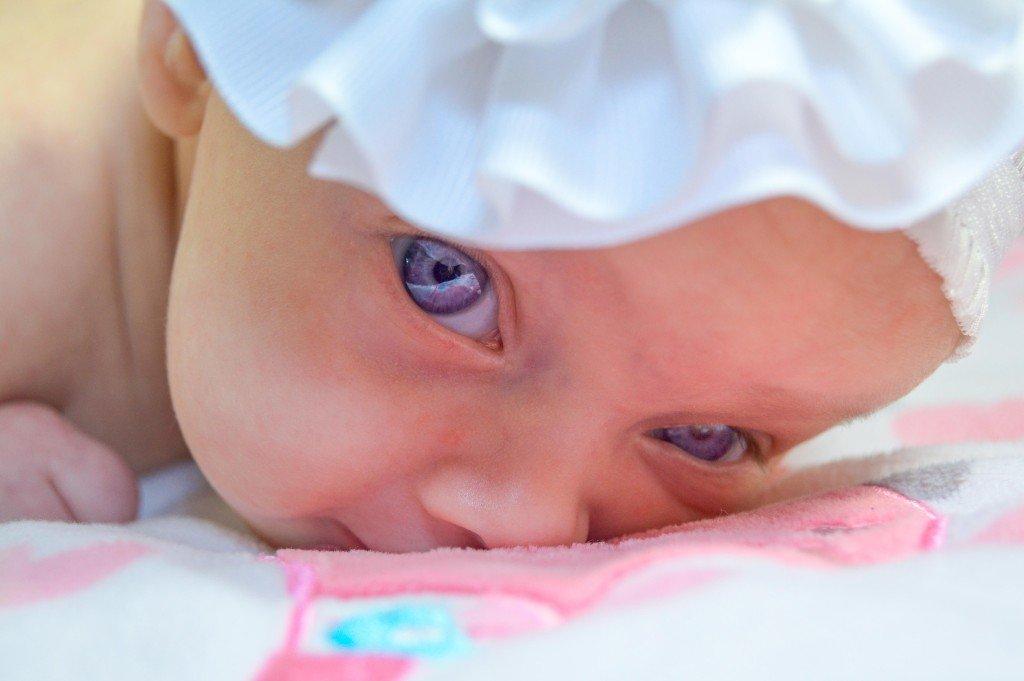 severe acne BABY