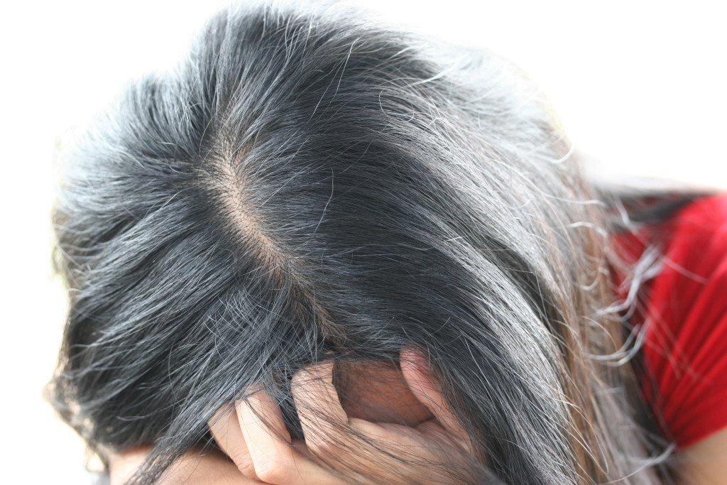 what causes hair loss women