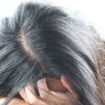 HAIR LOSS TREATMENT AND CAUSES FOR WOMEN AND MEN