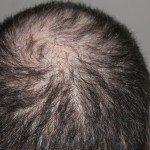 What Causes Hair Loss? Find Out the Whole Truth